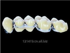 Dental PFM teeth