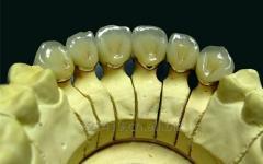 Dental PFM product