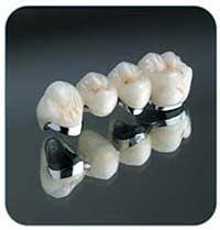 Dental porcelain fused to mental