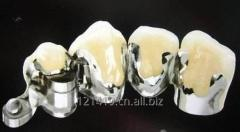Dental implant porcelain teeth