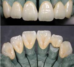 Dental implant porcelain teeth