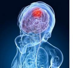 Лечение доброкачественных опухолей мозга в Харбине