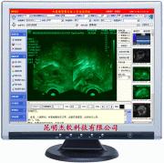 超声影像系统工作站