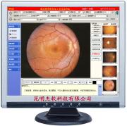 眼科影像系统工作站